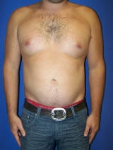 Pec Implants after 130081