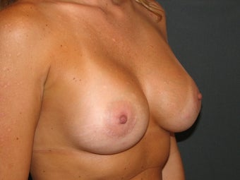Breast Augmentation  384406