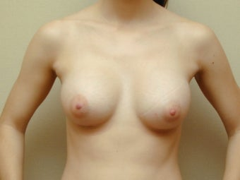 Subglandular Breast Augmentation after 469016