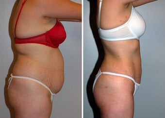 Liposuction after 330688