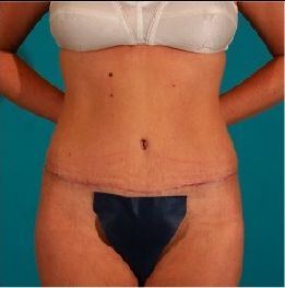 Tummy Tuck after 55091