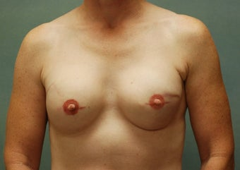 Breast Reconstruction  after 221548