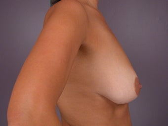 Breast Lift / Breast Augmentation before 291179