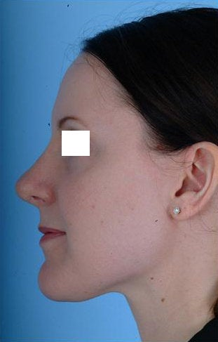 Revision Rhinoplasty  after 100950