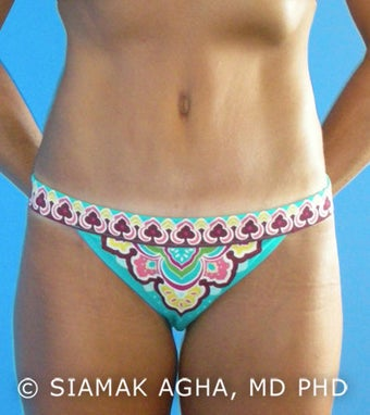 High-Definition Tummy Tuck after 173132