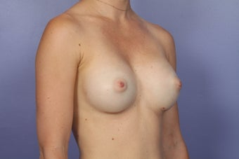 Breast Augmentation after 467311