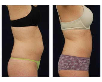 Liposuction 396991