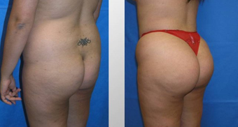 Butt Augmentation before 256436