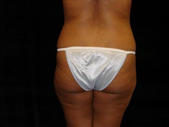 Brazilian Buttocks Lift before 246916