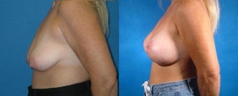 Breast Lift with Implants before 101826