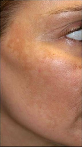 Fraxel - Melasma before 652382