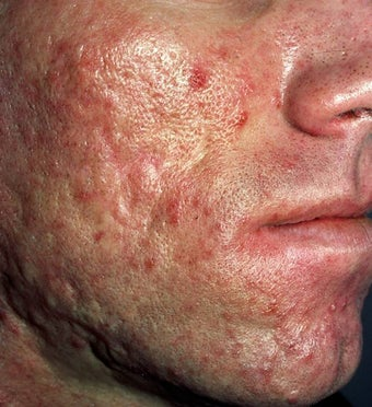 Acne Scarring before 157587