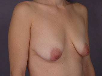 Breast Lift / Breast Augmentation  before 291038
