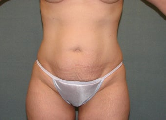 Tummy tuck before 403886