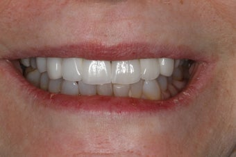 Cosmetic Dentistry - Fixed Bridge after 254392
