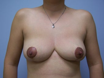 Breast Implant Removal after 532597