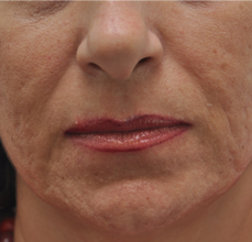 Acne Scarring before 426030