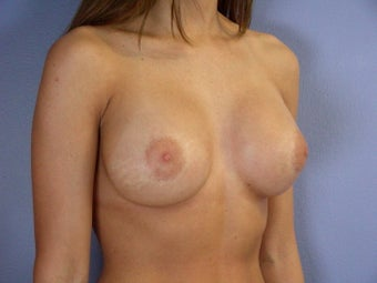 Breast Revision after 307221