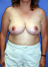 Breast Reduction Surgery (No Implants) after 124958