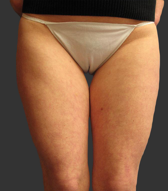 Exilis before 423770