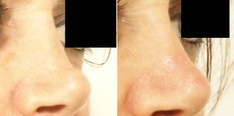 Non surgical rhinoplasty before 634593