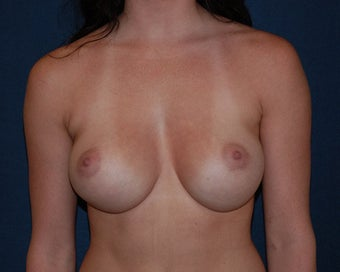breast implant revision after 334111