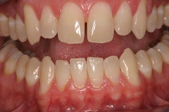 Porcelain Crowns  before 332541