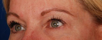 Upper Lid Blepharoplasty before 269836