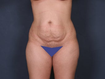 Tummy Tuck before 263241