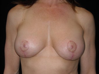 Augmentation mastopexy after 516299