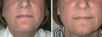 Juvederm Treatment to Naso-labial folds before 6391