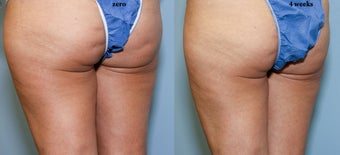 38 year old with cellulite 644193