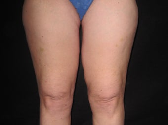 Thigh Lift after 590636