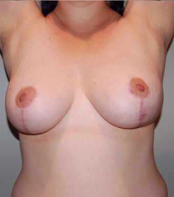 Vertical Breast Lift after 275506