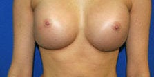 Breast Augmentation after 572343