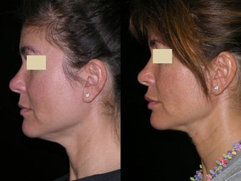 Smart Liposuction of the neck before 143601