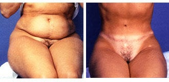 Tummy Tuck before 318683