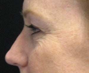 Fraxel CO2 Laser Resurfacing before 221155