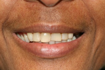 Smile makeover/ Full mouth reconstruction before 317154