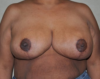 Breast Reduction after 530711