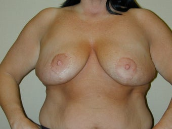Subglandular Breast Augmentation before 469021