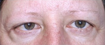 Brow Lift with lower blepharoplasty (lower eyelids) before 143523