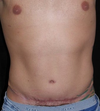 Male tummy Tuck, Flank Liposuction after 578199