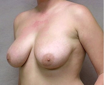 Breast Reduction before 365564