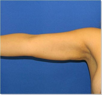Arm Liposuction after 250346