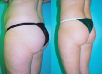 Tummy Tuck with Liposuction before 263632