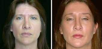45 year old female, rhinoplasty before 629120