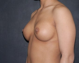 breast implant revision 334108