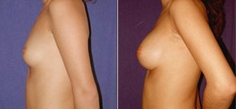 Breast Augmentation after 110005