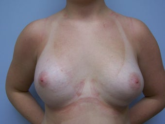 Breast Reconstruction after 589938